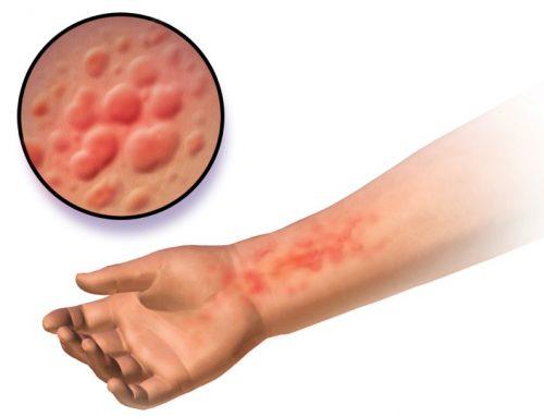 Alergia a la picadura de insectos